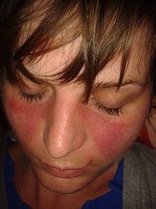 hpv skin rash on face)