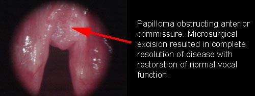 laryngeal papilloma caused by