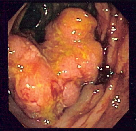 cancer de colon ultima faza)