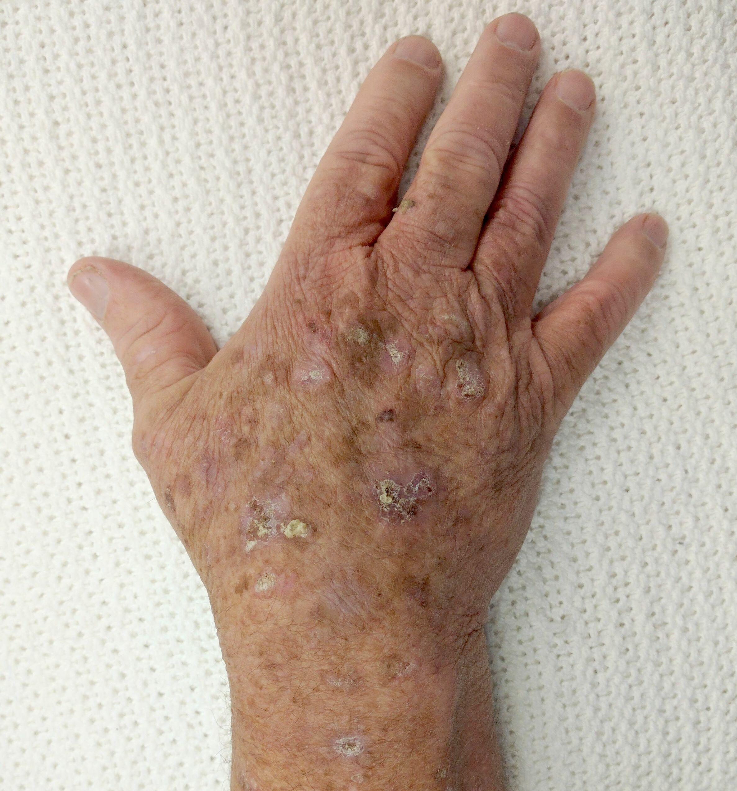 papilloma virus keratosis)