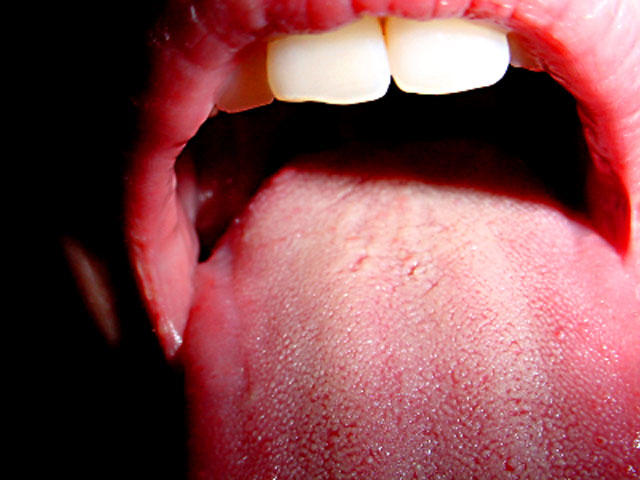 hpv in mouth)