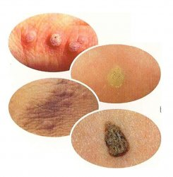 Hpv warts and pregnancy,