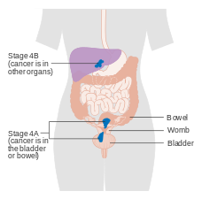 endometrial cancer in metastatic