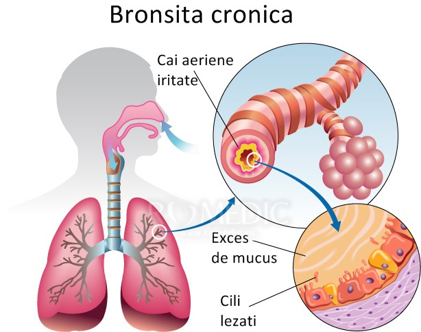 tratament bronsita adulti