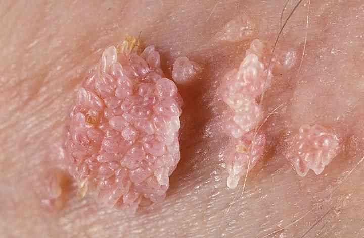 papilloma virus sta znaci helminths din viermi rotunzi