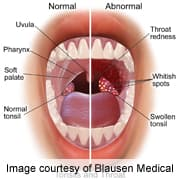 hpv in mouth