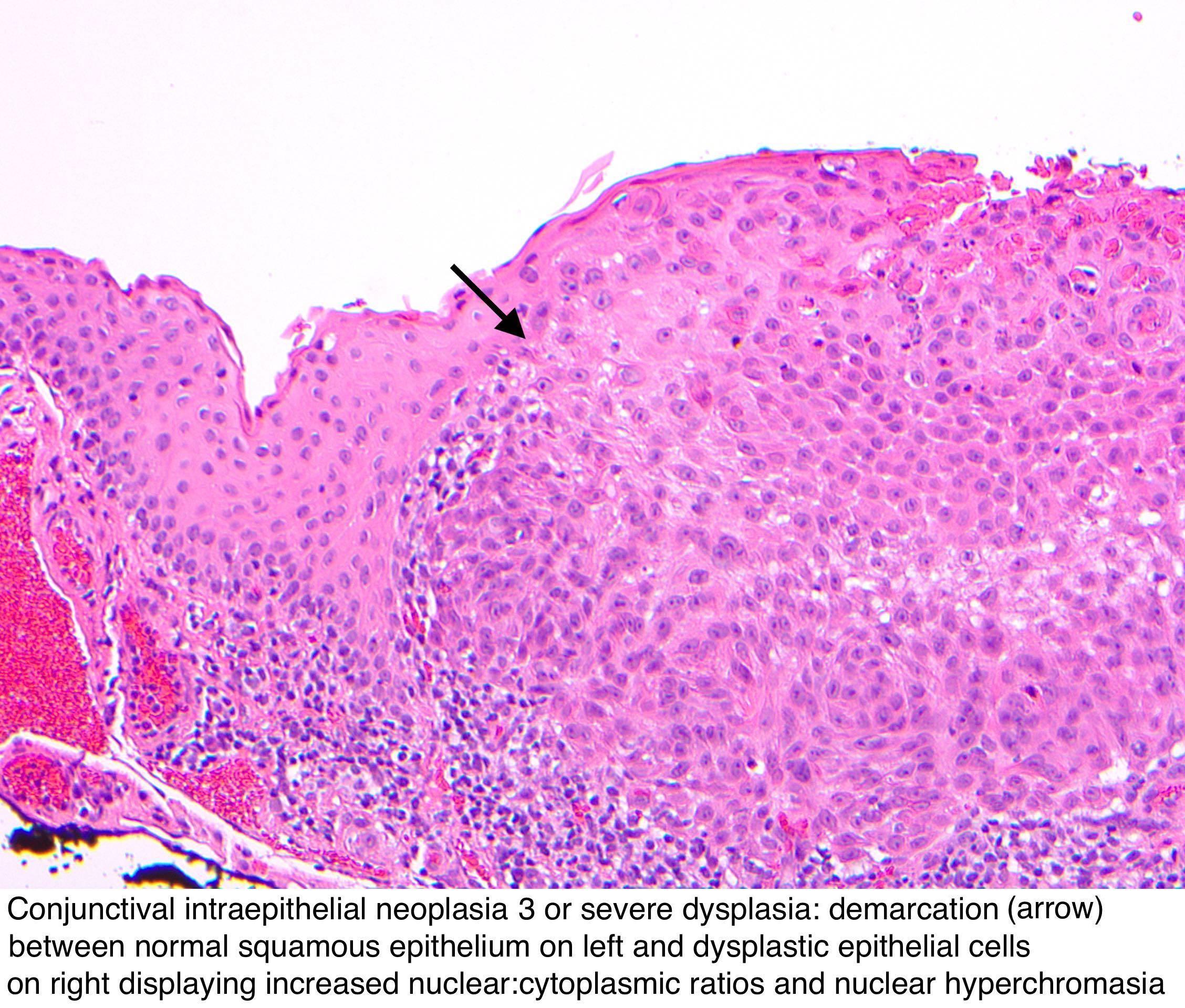 papilloma neoplastic