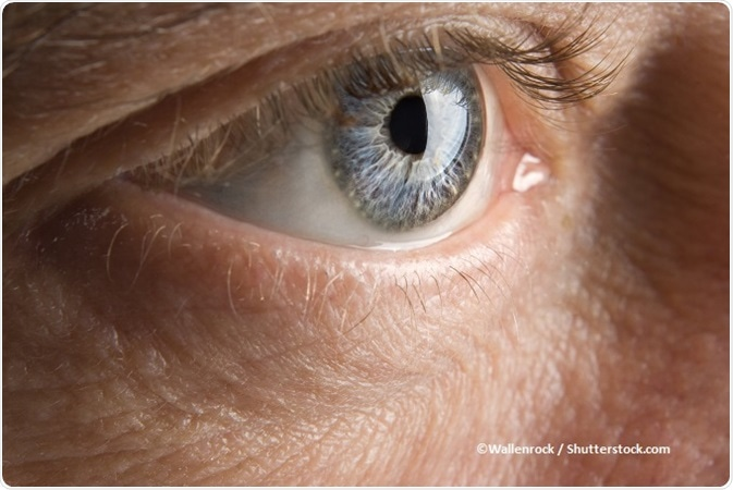 Papilloma virus occhi rossi. Paraziti u nasem organizmu