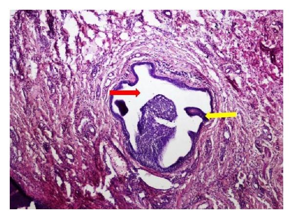 Articulații papilloma - Ductal papilloma minor salivary gland, Ductal papilloma of salivary gland