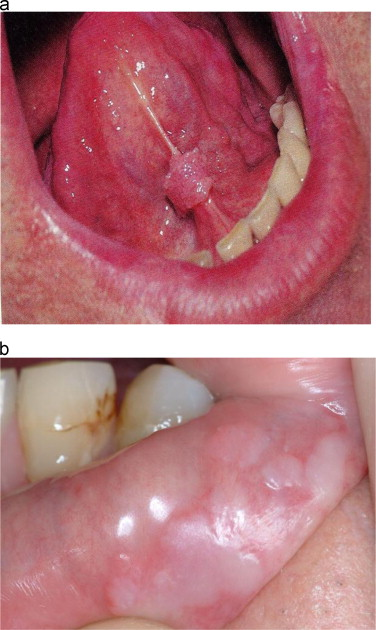 human papillomavirus infection symptoms in mouth)