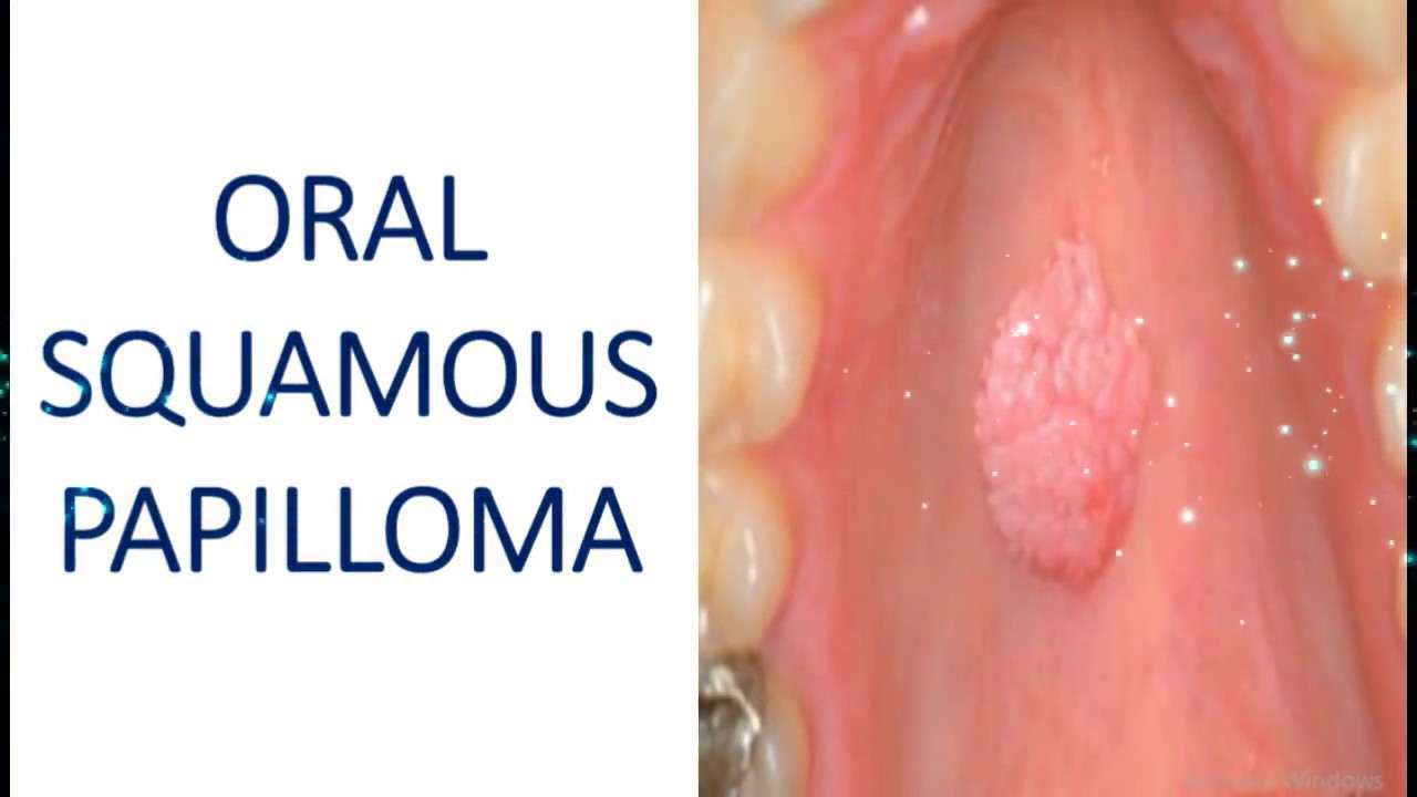 what is a benign squamous papilloma