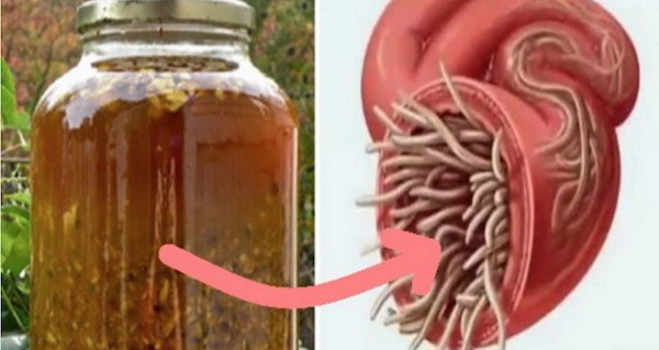 Medicament pentru viermi din corpul uman. Viermii si parazitii intestinali