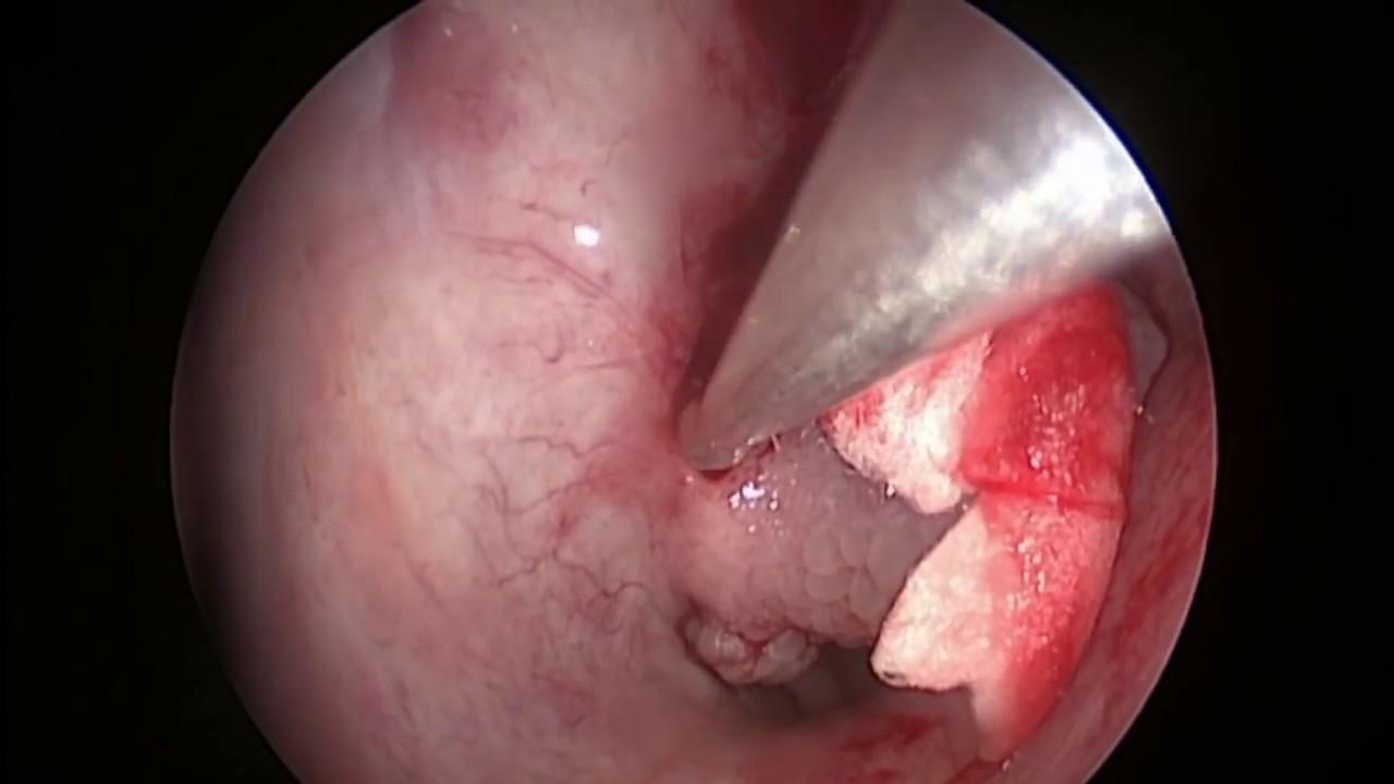 papiloma nasal tratamiento)