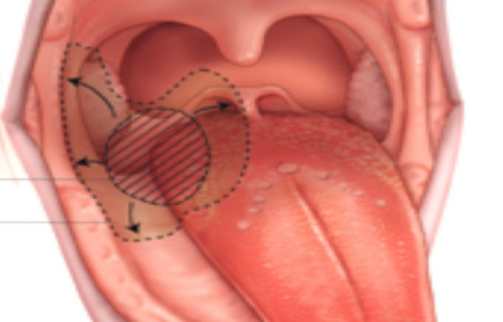 papillomavirus bouche image