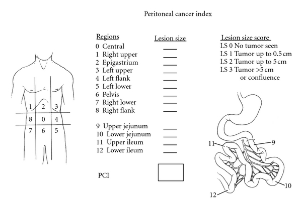 peritoneal cancer index calculation