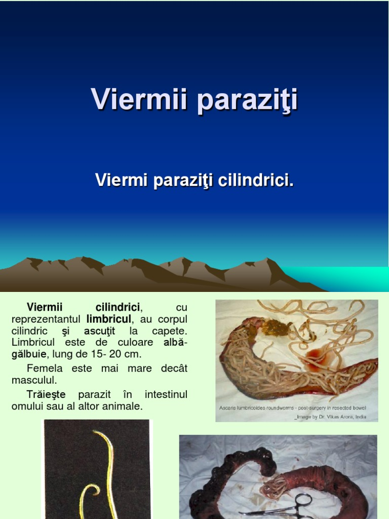 corpul este un parazit)