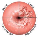 condiloame cu eroziune a colului uterin