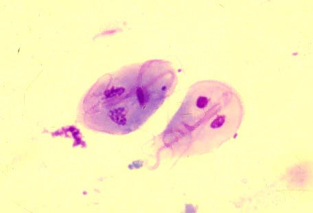 g duodenalis hpv head cancer