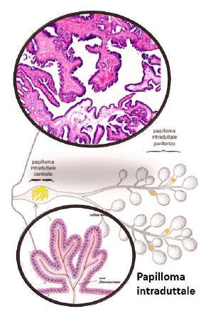 papilloma intraduttale mammella)