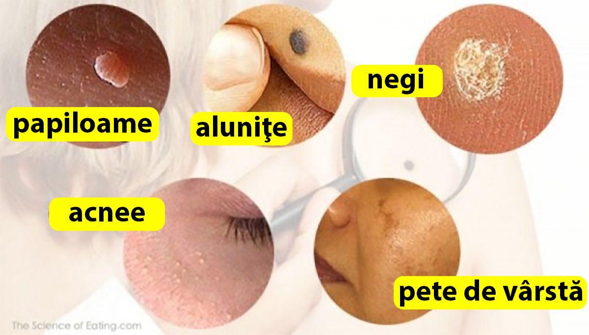 papilomul pielii faciale