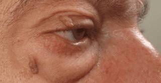 asportazione papilloma occhio