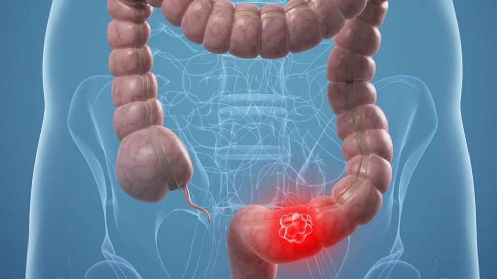 cancer de colon como se detecta)