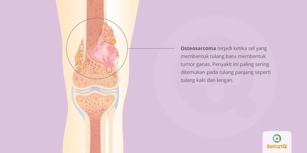 cancer sarcoma adalah)