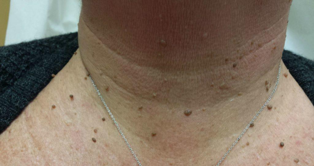 Papiloamele cutanate (negi pediculati) – ce sunt, cum arata si ce tratamente exista