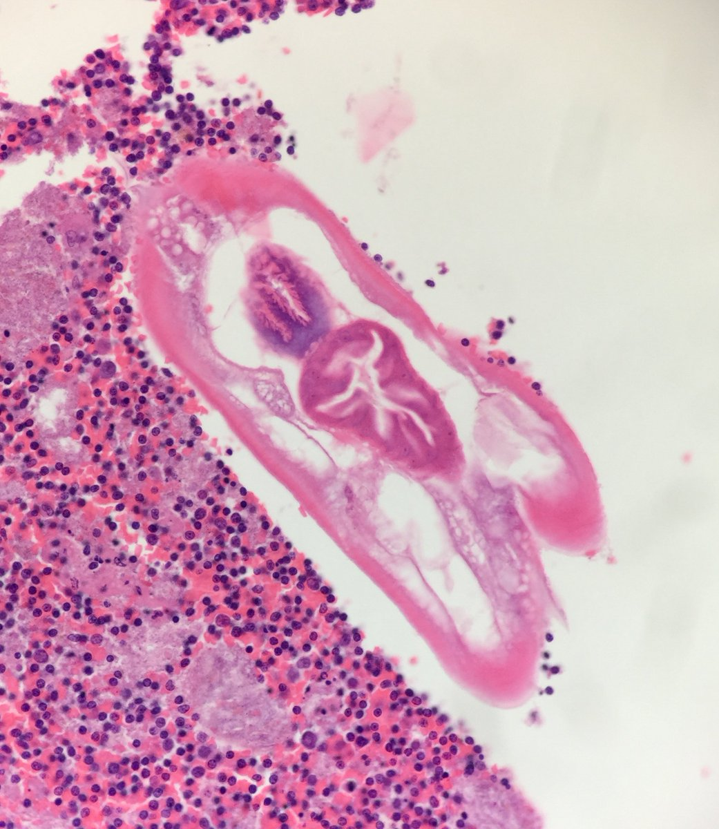 enterobius vermicularis histopathology rectal cancer in 20s
