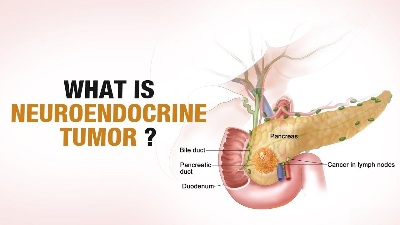 endocrine cancer symptoms)