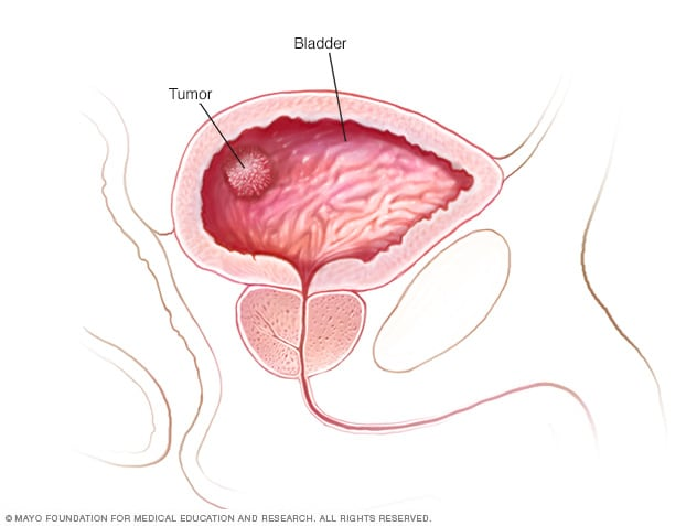 que es bladder cancer