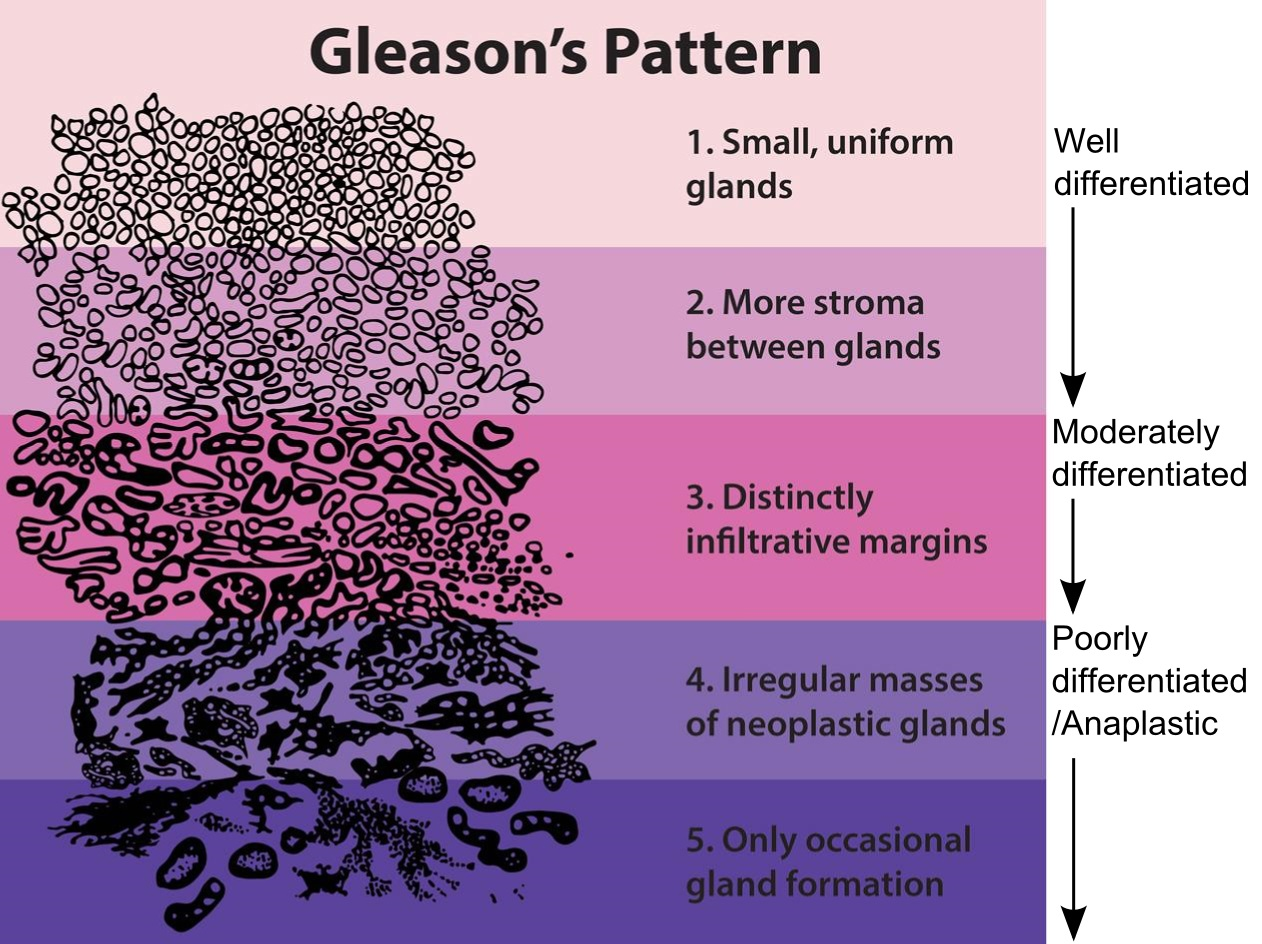 cancer de prostata gleason 7 4 3)