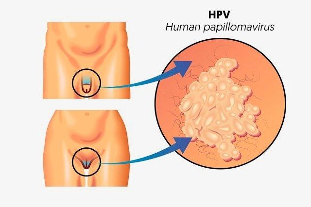 Papillomavirus humain comment s en debarrasser