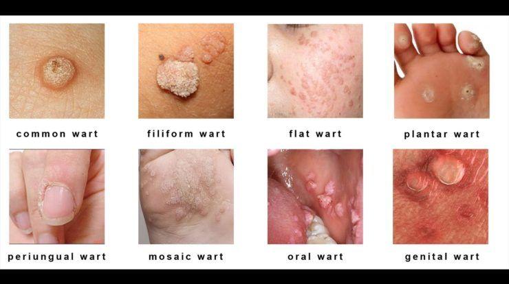 Herpes genitale papilloma