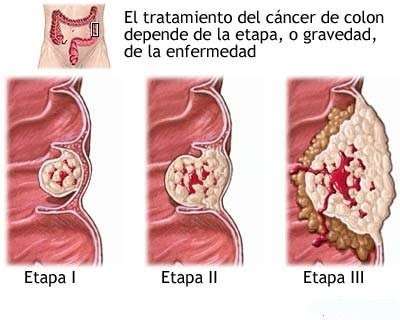 cancer colorectal no poliposico
