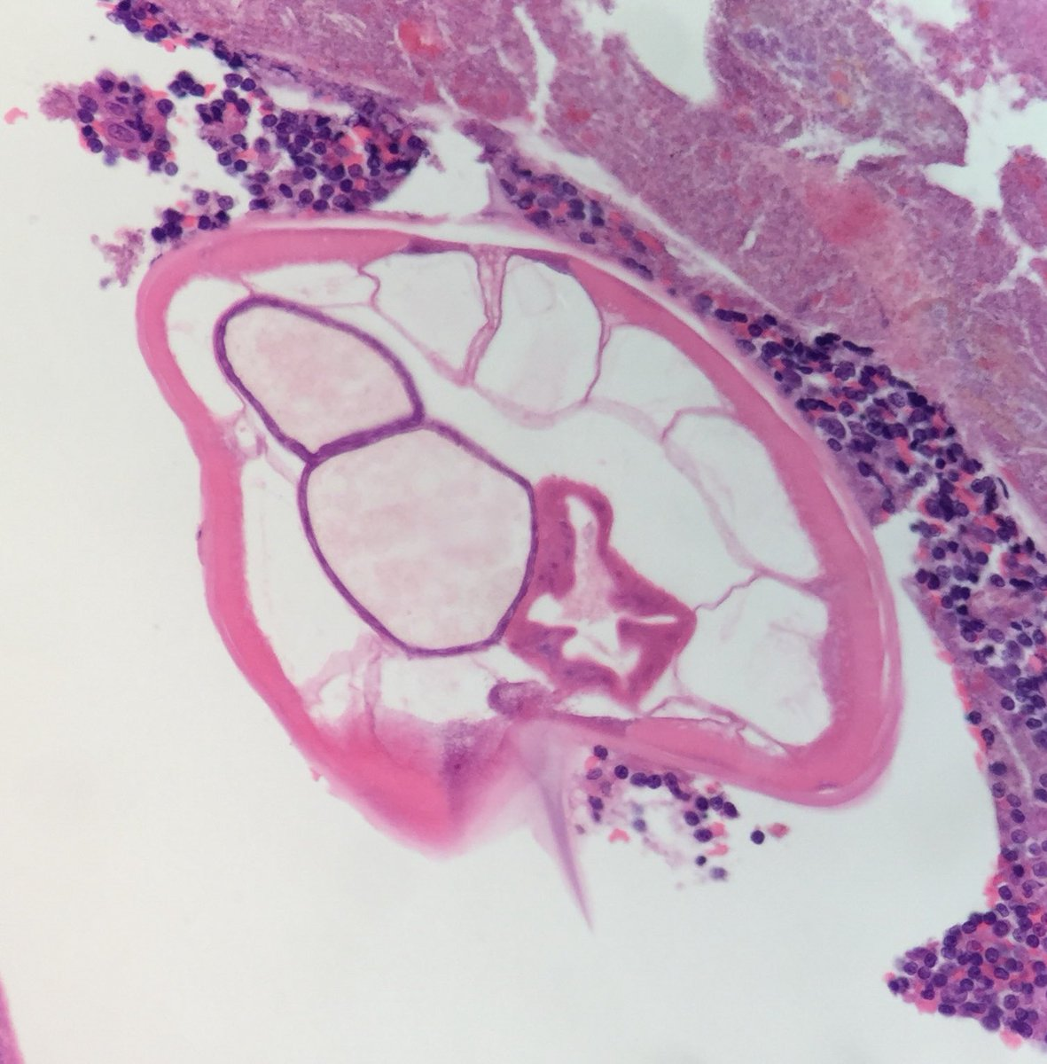 enterobius vermicularis histology)