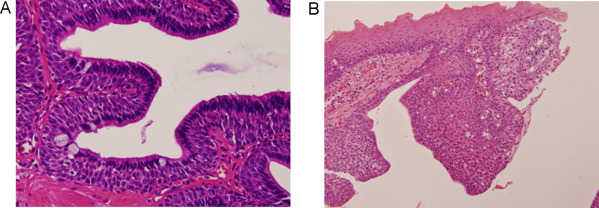 Intraductal papilloma parotid gland, Sintomi hpv femminile