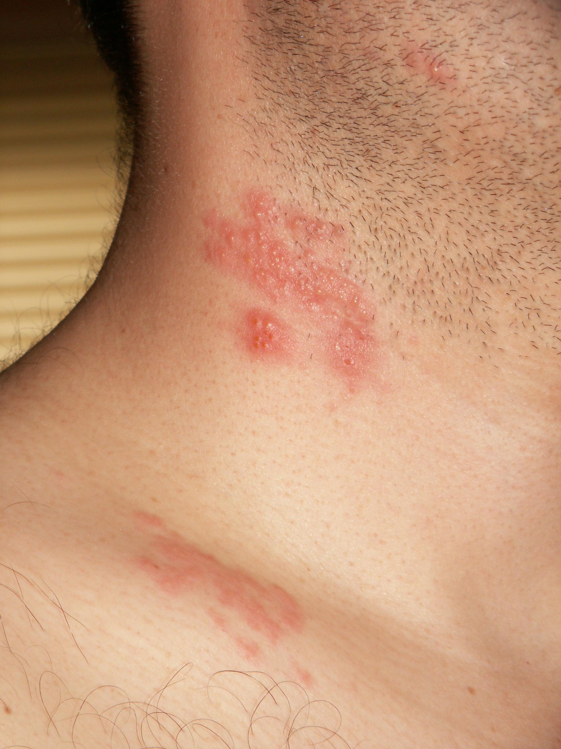 hpv skin breakouts)