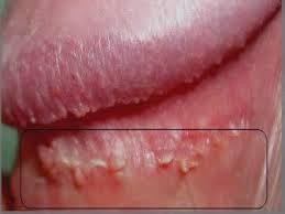 Human papillomavirus (hpv) & kutil kelamin. - Penyebab human papilloma virus
