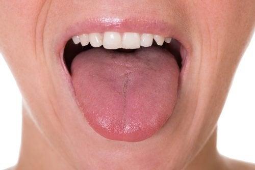 tumore alla lingua da papilloma virus)