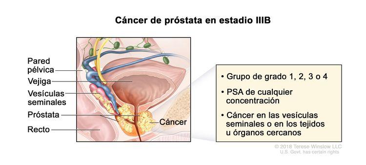 cancer de prostata estadios