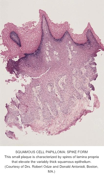 Icd 10 squamous papilloma esophagus, Icd 10 papilloma right lower lid