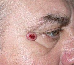 Semnele si simptomele cancerului de piele