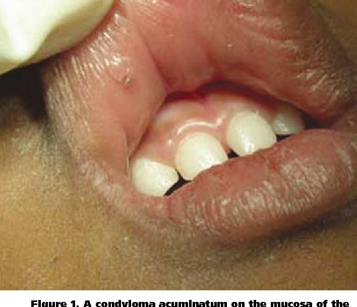 condilom vezical