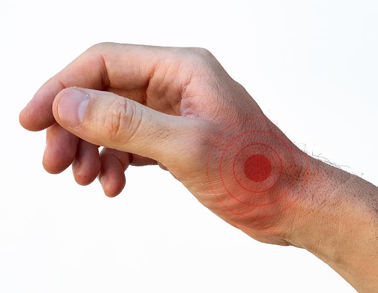 durere între degetele de pe mână ce este