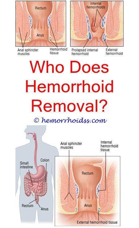 hpv warts vs hemorrhoids