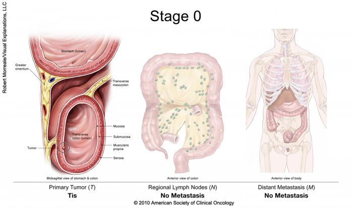 cancer rectal t3