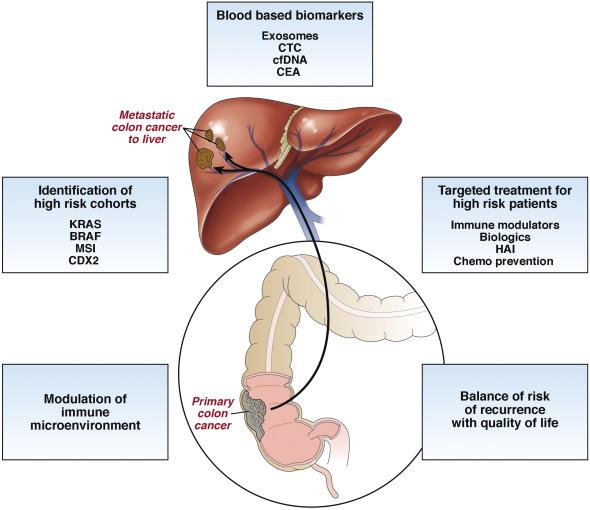 Cancerul hepatic: Simptome, Cauze, Factori de risc | Despre medicina
