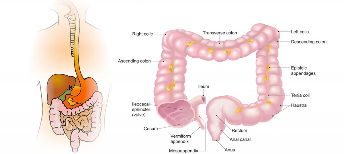 cancer colon simptome tratament)
