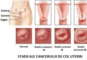 cancer genital feminin simptome)